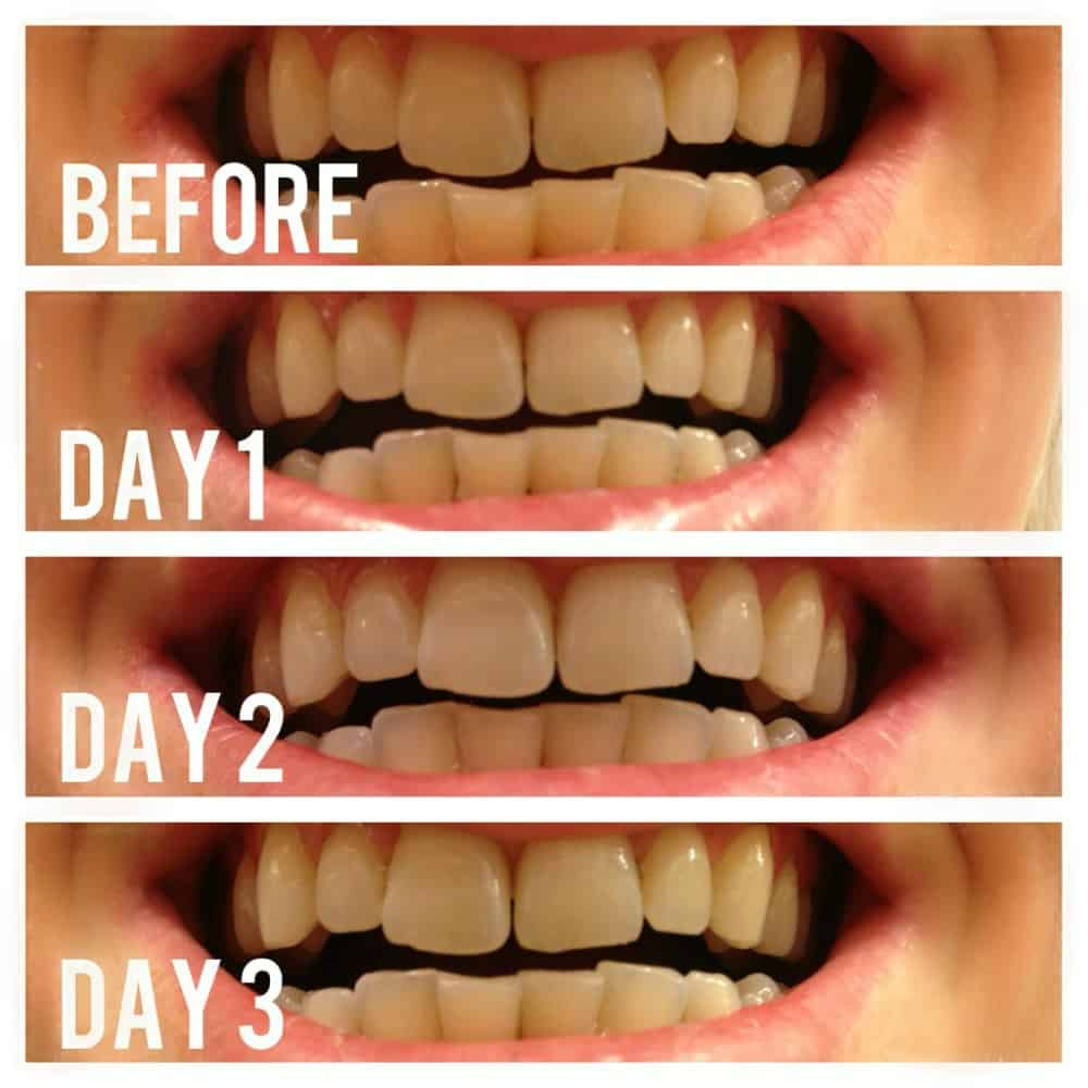 Day 1 - 3 Teeth Whitening With Activated Charcoal